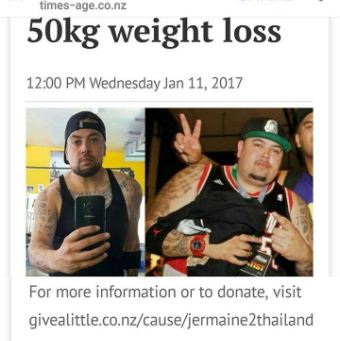 tummy tuck after massive weight loss thailand