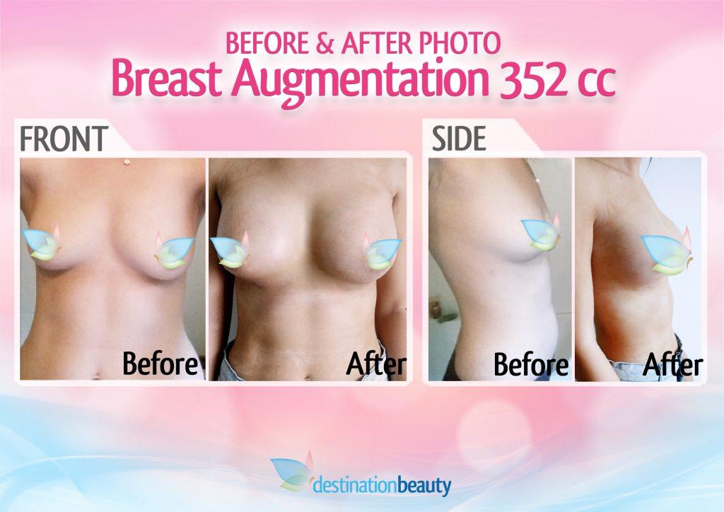 breast augmentation bangkok