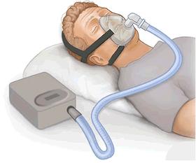 CPAP gastric sleeve