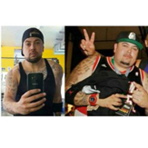 Jermaine lost 50 kgs   Extended Tummy Tuck and Male Breast Reduction in Bangkok!