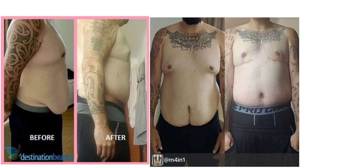 Jermaine lost 50 kgs | Extended Tummy Tuck and Male Breast Reduction in Bangkok!