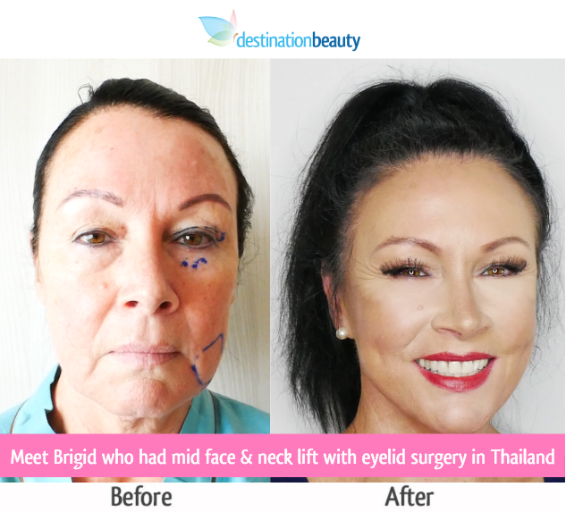face lift thailand cost