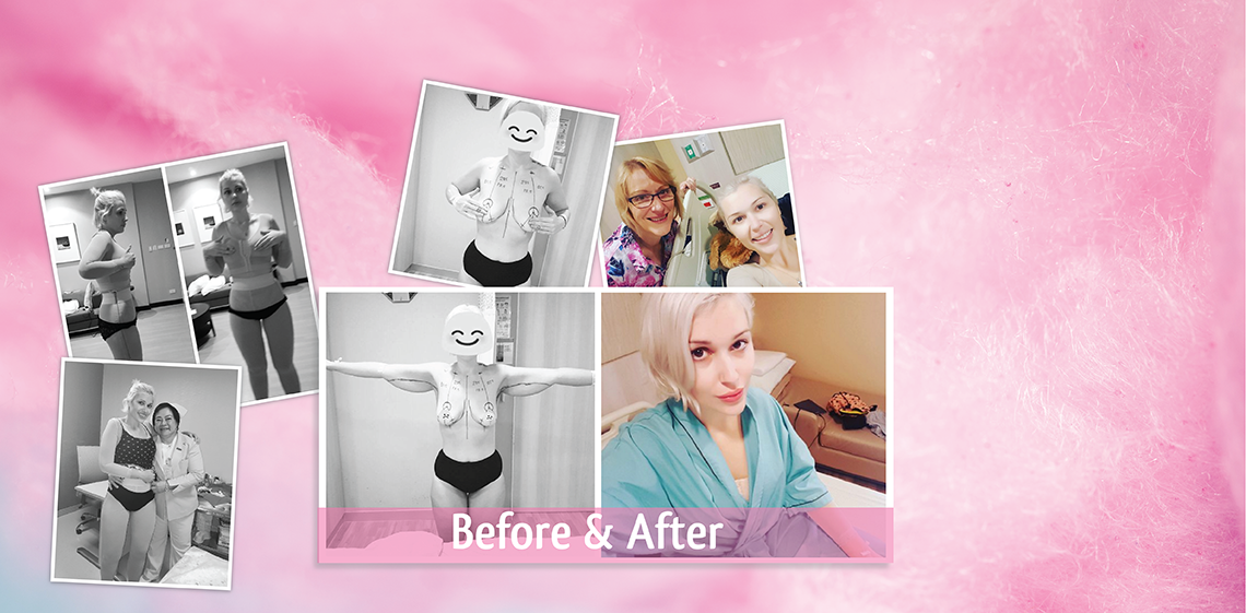 Breast Augmentation with Lift, Arm lift, and Thigh lift Thailand