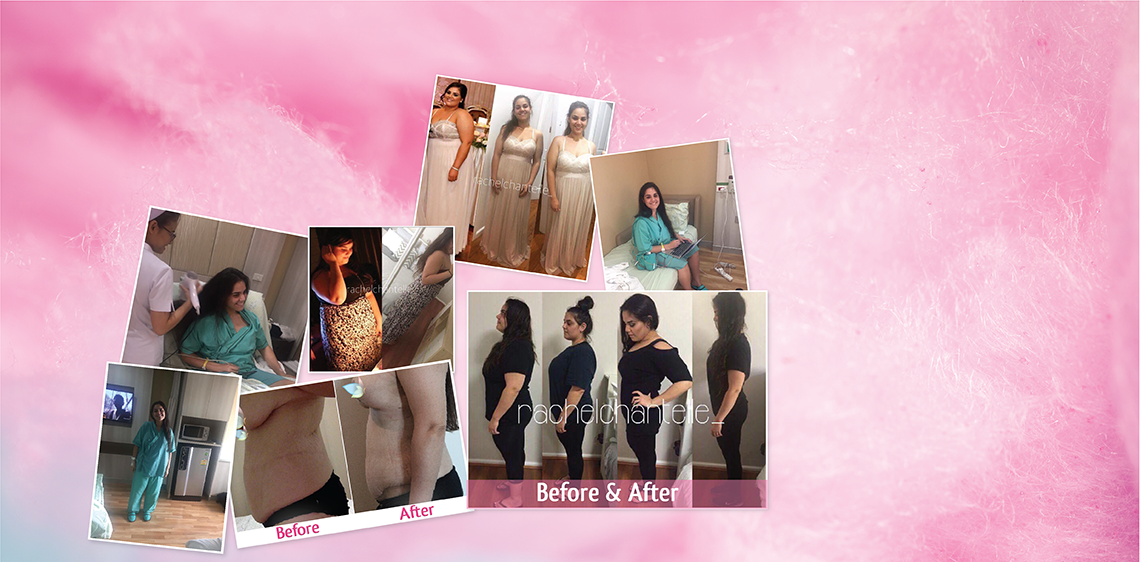 Skin Removal Thailand After Losing 55 kgs | Plastic Surgery