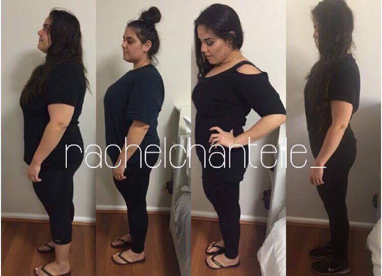Rachel's before and skin removal after losing 55 kgs