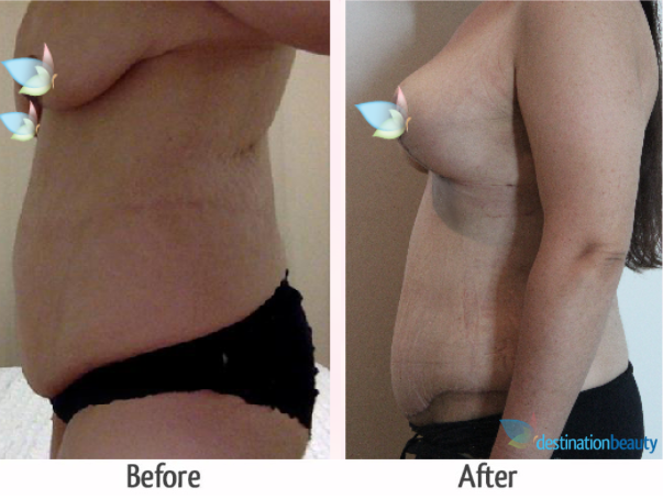 breast augmentation with lift and tummy tuck