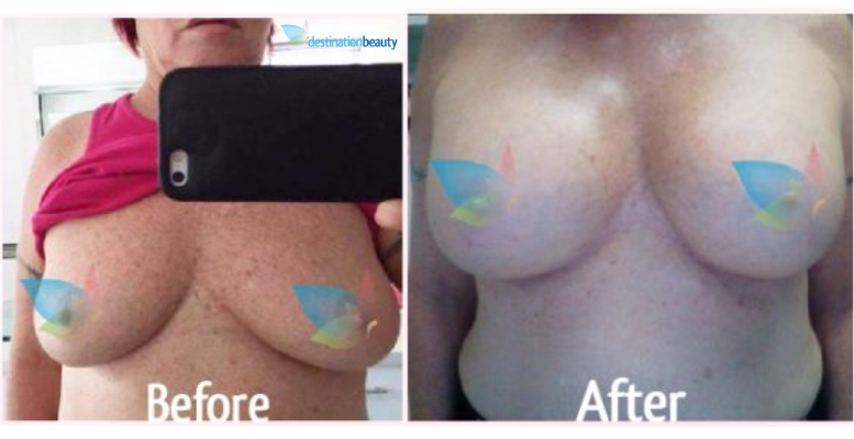 breast augmentation thailand