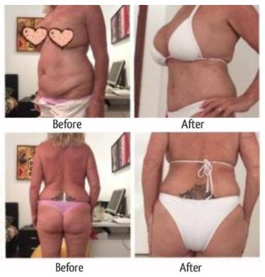 liposuction and tummy tuck thailand