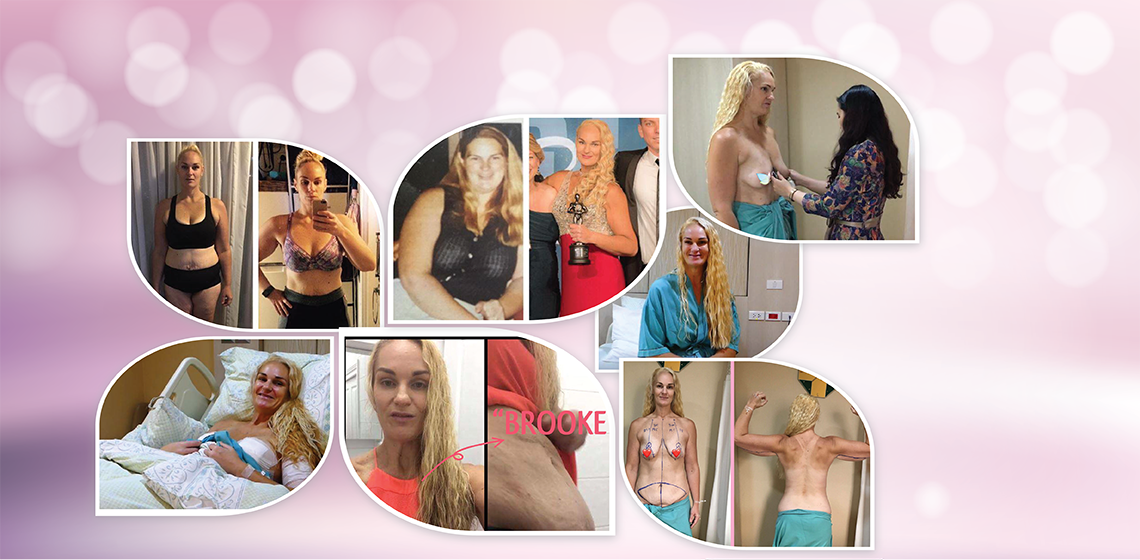 Mummy makeover in Thailand – breast implants with lift, arm lift, and tummy tuck
