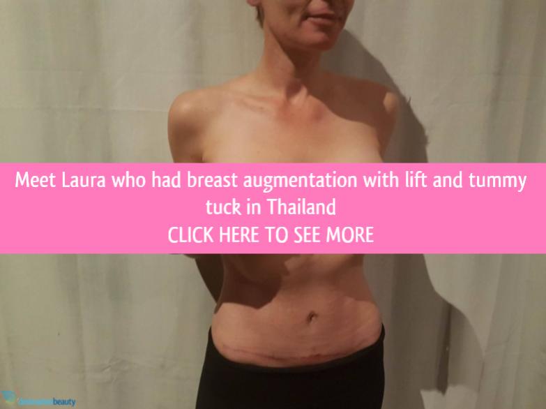 mummy makeover in thailand