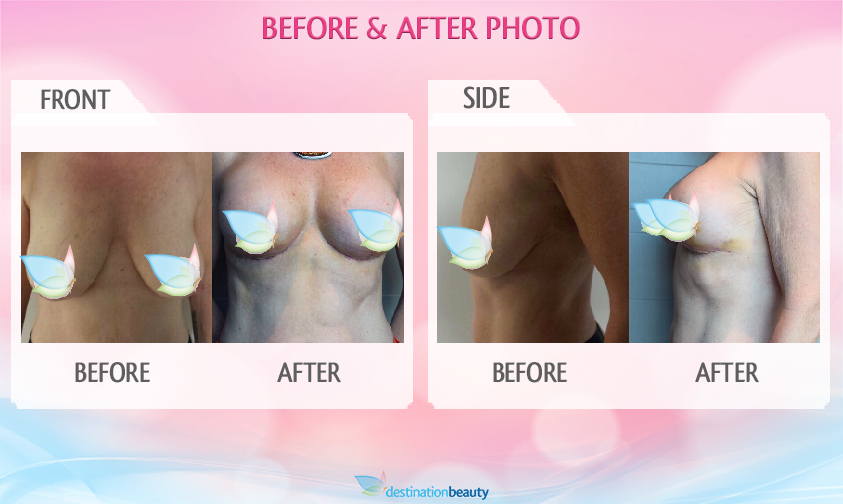 breast augmentation with lift bangkok
