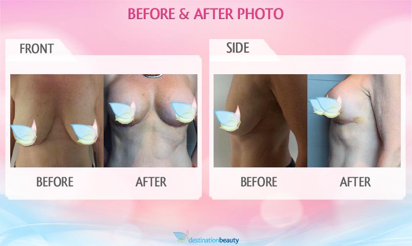 breast augmentation with lift bangkok