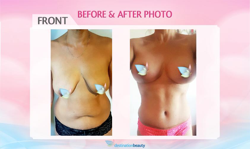 before-after-mummy-makeover-bangkok