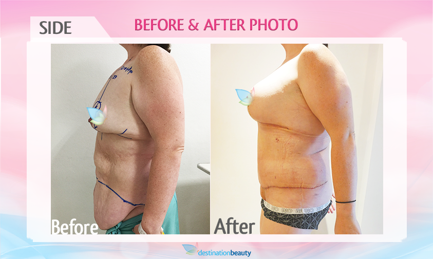 breast augmentation with lift and extended tummy tuck