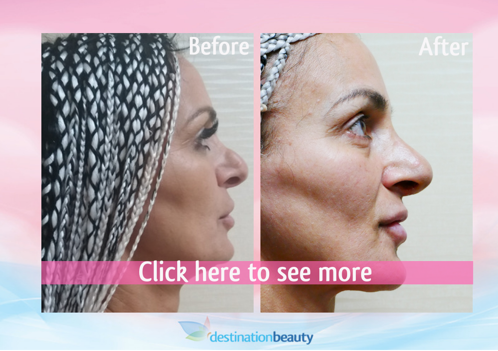 Chrisanthi-before-and-after-nose-surgery-bangkok