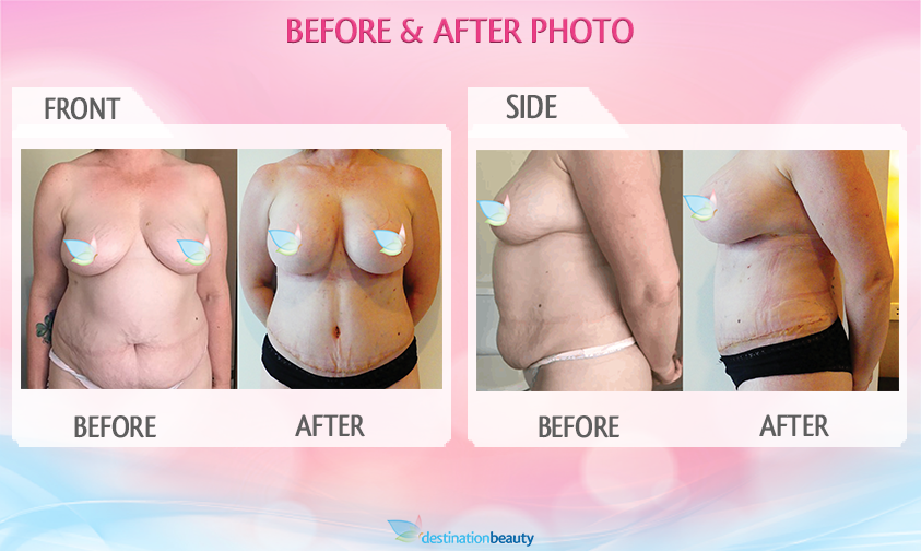 breast augmentation and tummy tuck bangkok