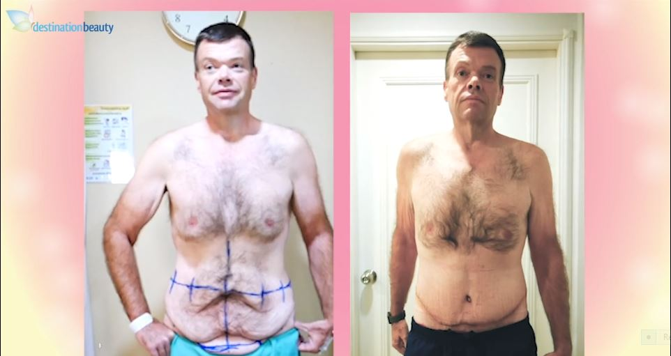 Mathew's skin removal surgery in Bangkok after massive weight loss!!