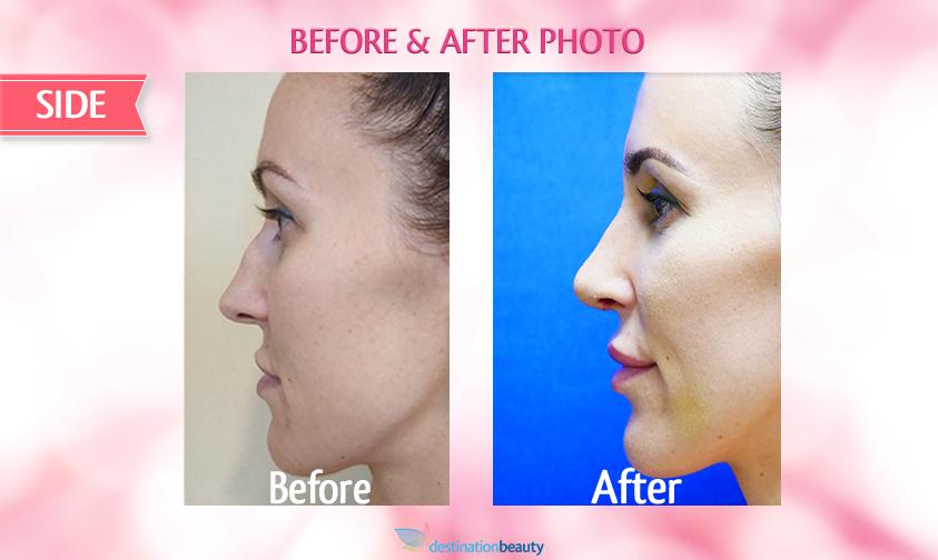 nose surgery bangkok