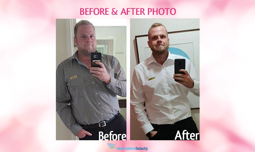 before and after bariatric surgery thailand