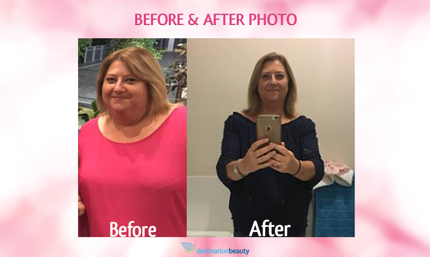 before and after gastric sleeve bangkok