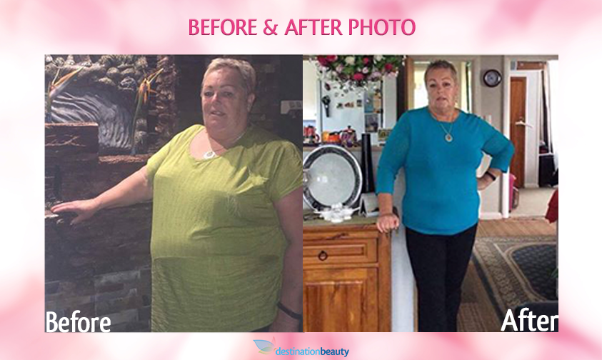 before and after gastric sleeve thailand