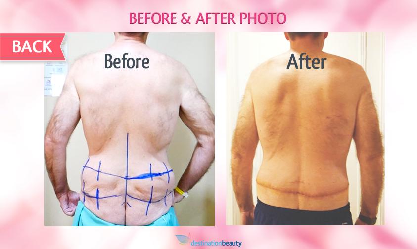 belt lipectomy bangkok-before and after