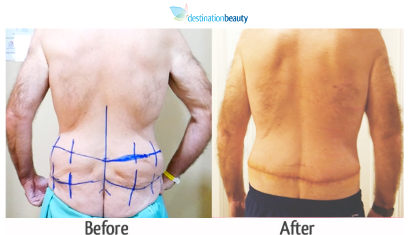 belt-lipectomy-bangkok-before-and-after-thailand