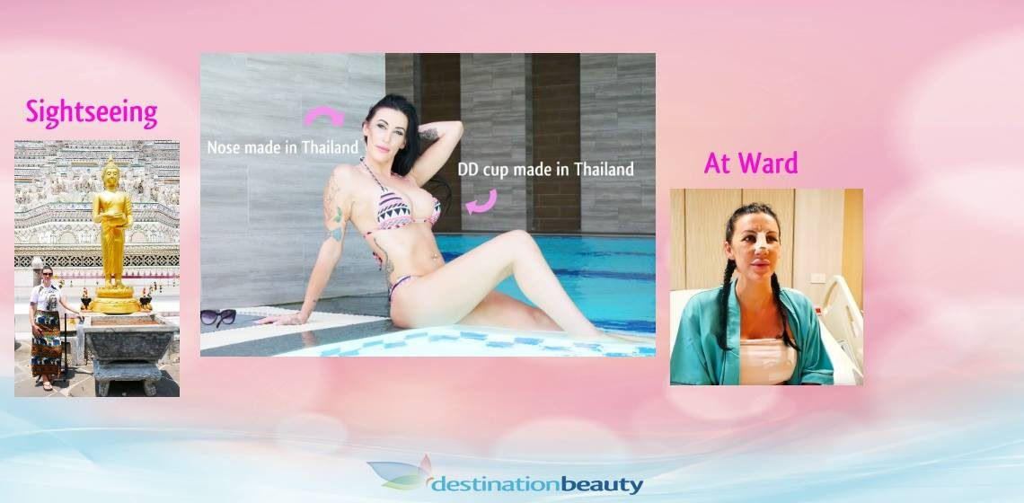 Alyssa's 450cc breast augmentation and her new nose – nose job in Bangkok!