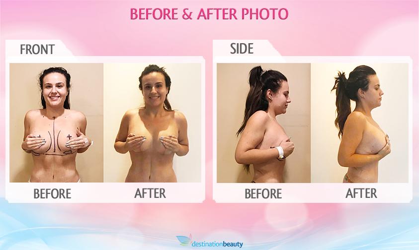 breast augmentation revision bangkok