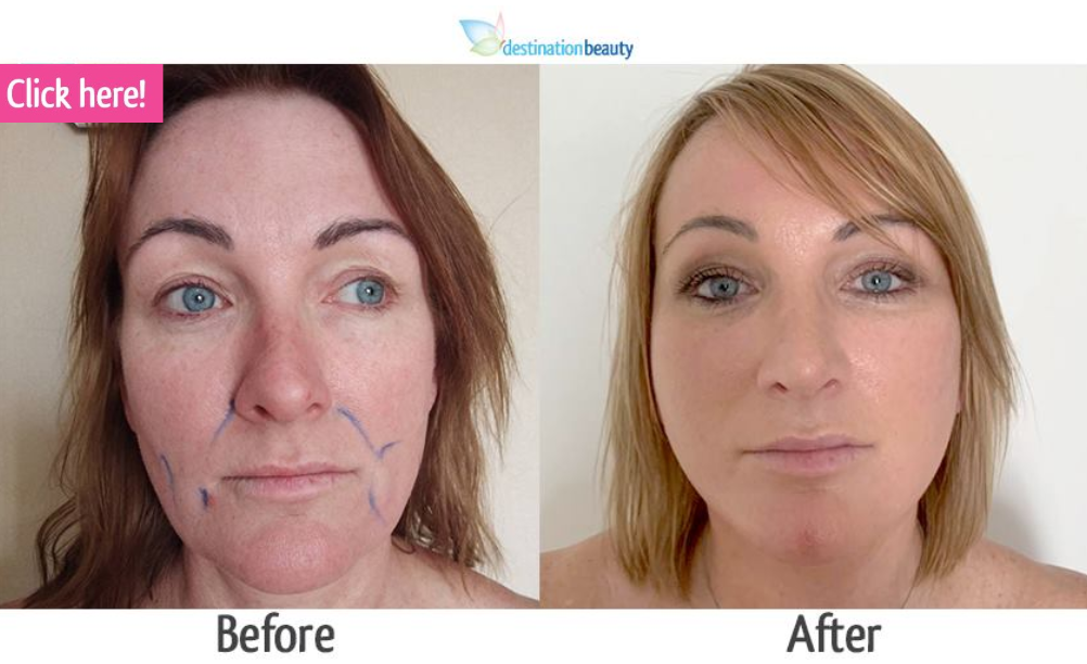 nose job and face lift thailand