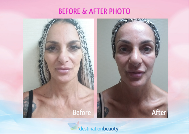 rhinoplasty-before-and-after-bangkok