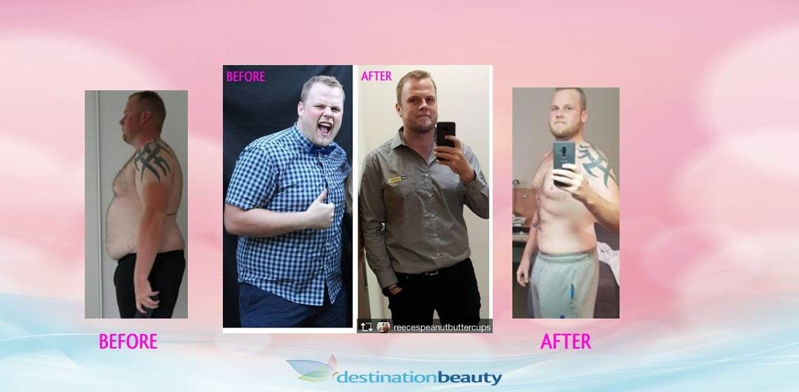 Reece lost 50 kgs 5 months after gastric sleeve surgery in Bangkok!
