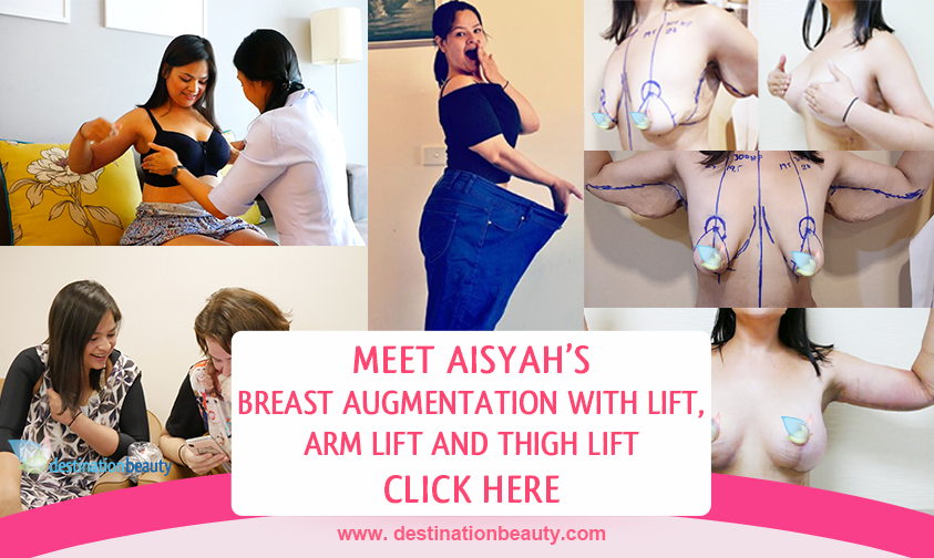 Aisyah's breast augmentation with lift, arm lift, and thigh lift in Bangkok after losing 60 kgs!