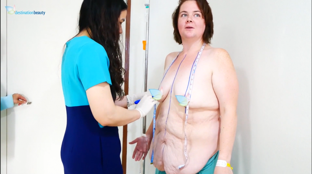 Chantelle's consultation with Dr. Angkana for breast lift with implants and extended tummy tuck in Bangkok!