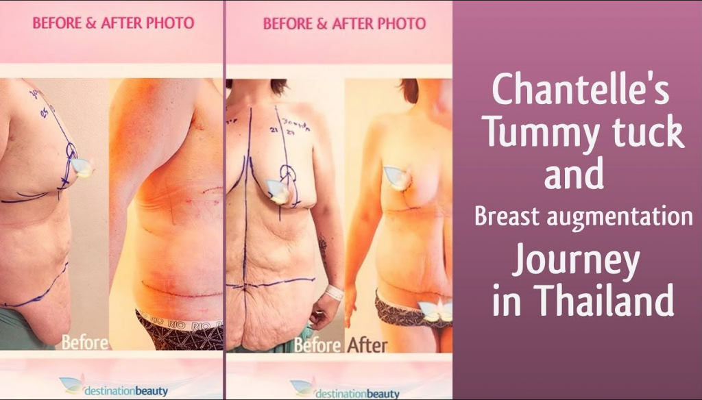 Chantelle's massive surgery in Bangkok after losing 100 kgs!!