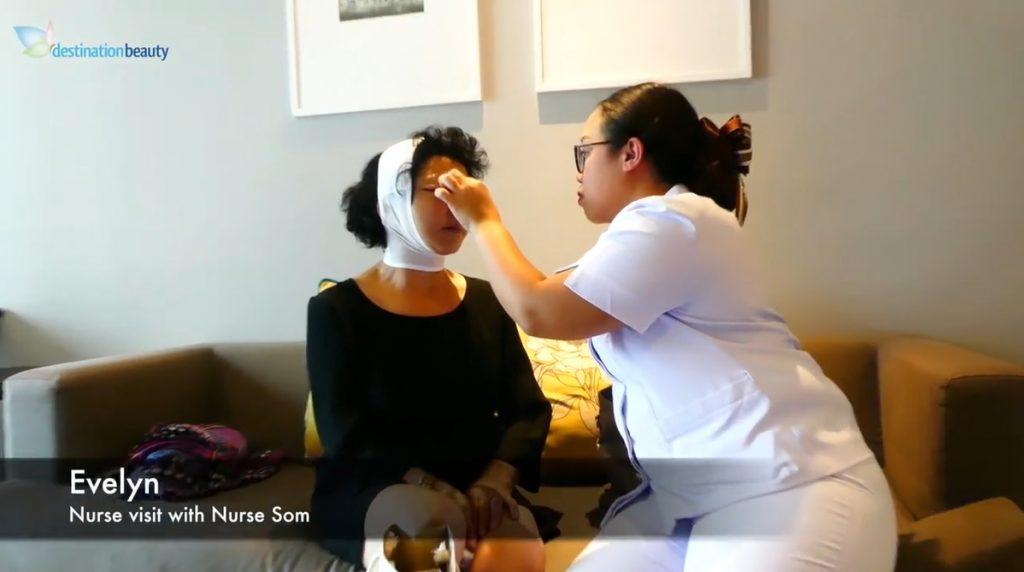 Evelyn's facelift - nurse visit 4 days post op