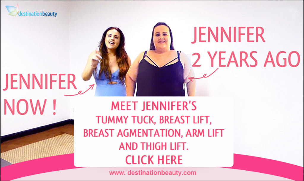 Jennifer-tummy tuck-breast lift-breast augmentation-arm lift-thigh lift
