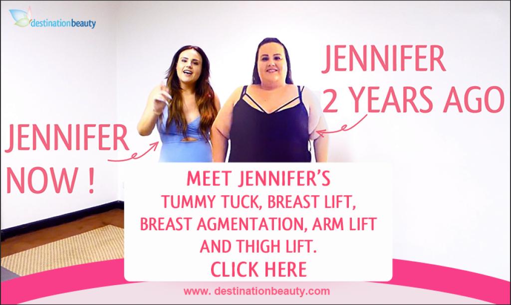 Jennifer-tummy tuck-breast lift-breast augmentation-arm lift-thigh lift