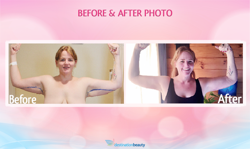 before and after pictures arm lift bangkok