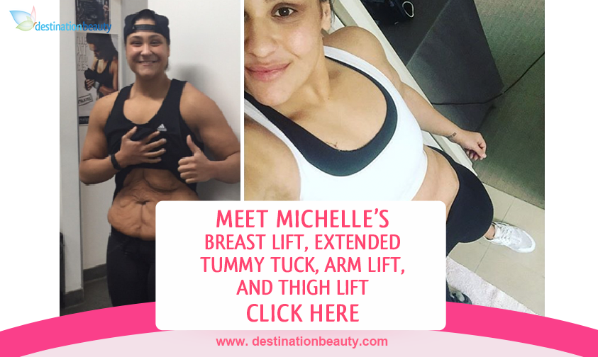 Michelle's breast lift, extended tummy tuck, arm lift, and thigh lift bangkok