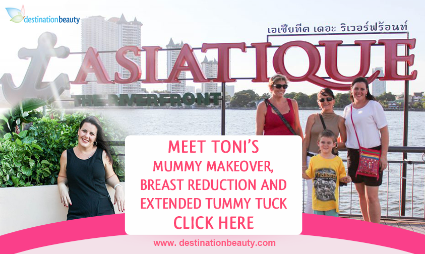 Toni's breast reduction and extended tummy tuck in Bangkok