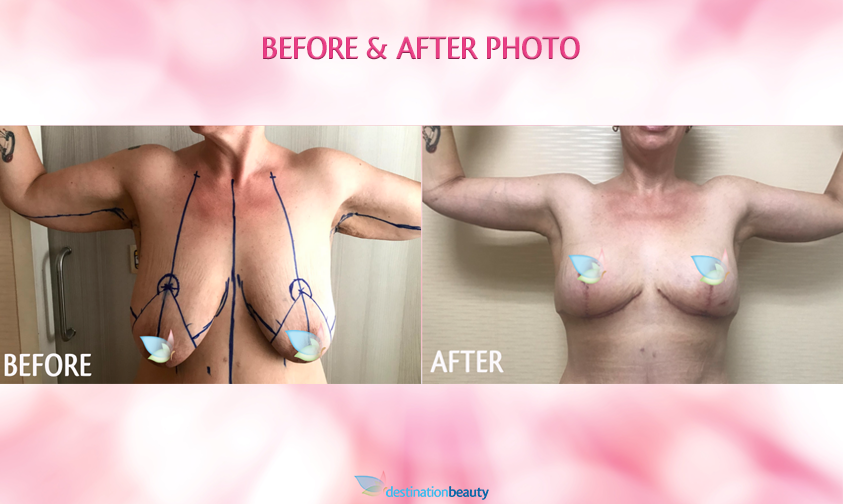 before and after arm lift and breast lift bangkok