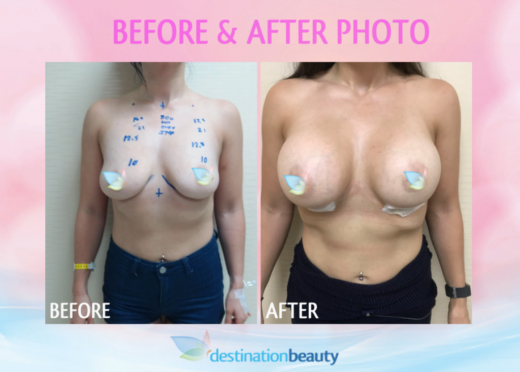 before and after breast implants thailand