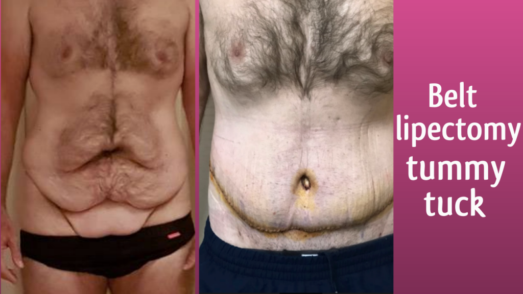 belt lipectomy tummy tuck before and after in Bangkok!