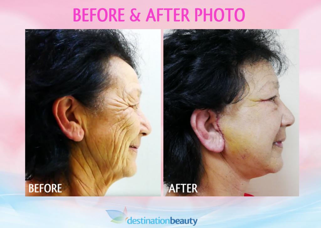 face lift before and after bangkok