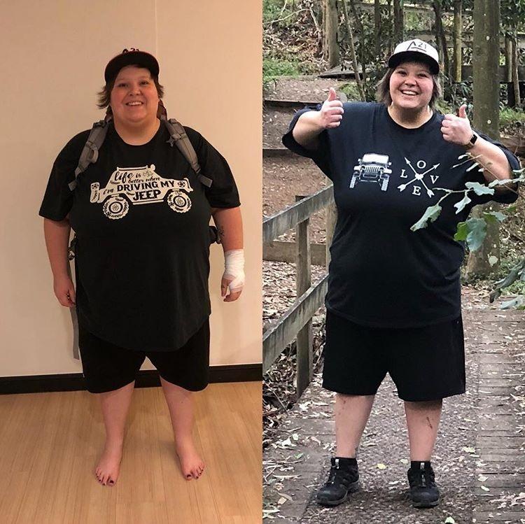 เอมิลีลดน้ำหนัก 38.5 กิโล 3 เดือนหลังจากการผ่าตัดกระเพาะ!