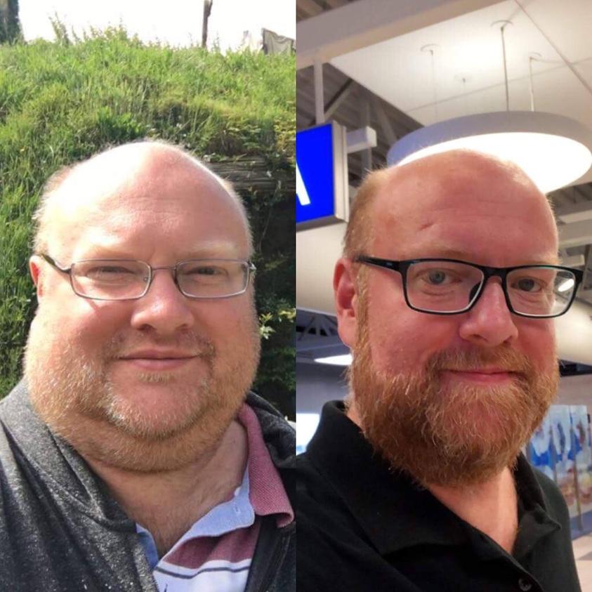 แลนซ์ลดน้ำหนัก 45 กิโล 1 ปี หลังจากการผ่าตัดกระเพาะ!