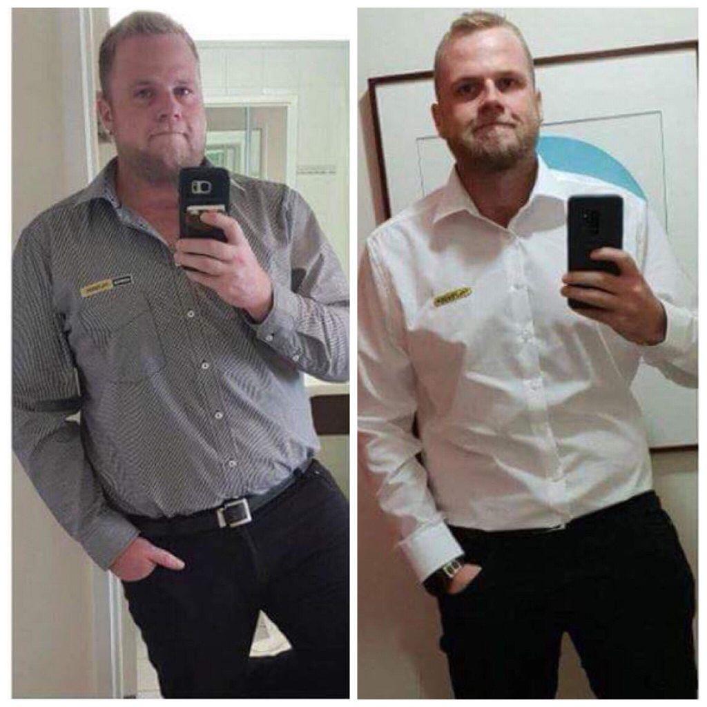 รีสลดน้ำหนัก 50 กิโล 5 เดือน หลังจากการผ่าตัดกระเพาะ!