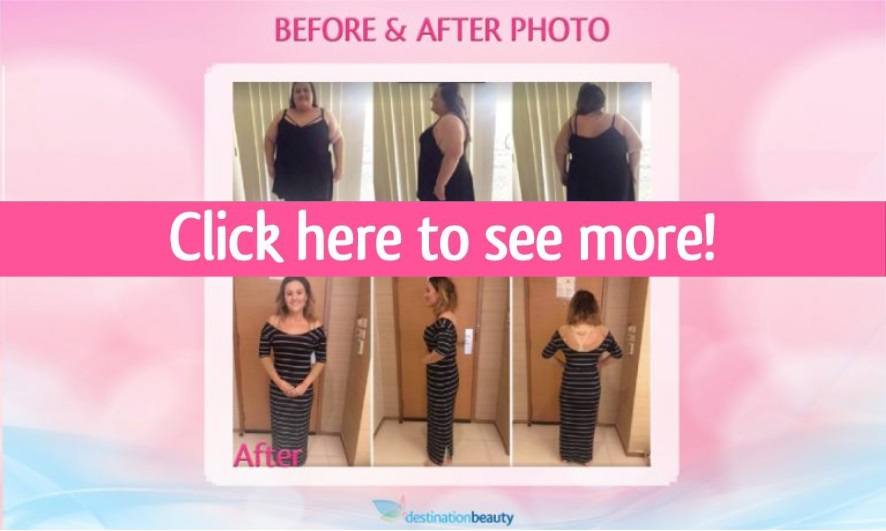 after weight loss thailand