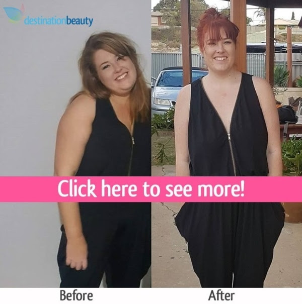 weight loss surgery thailand before and after